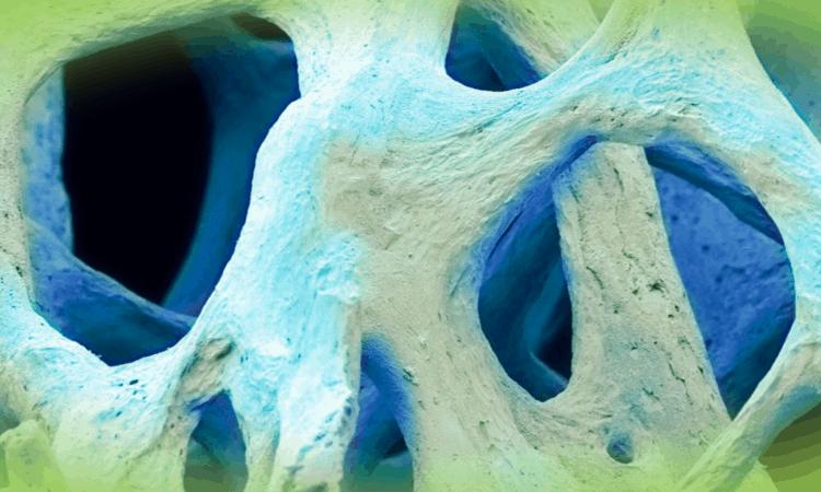 Research bone